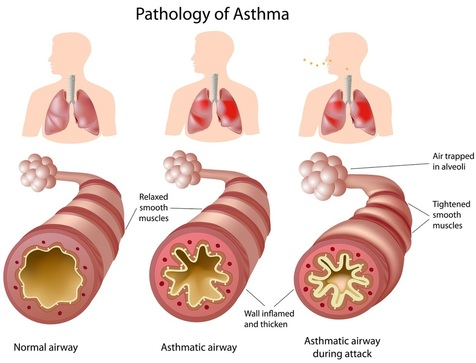 Asthma - ANATOMY AND PHYSIOLOGY